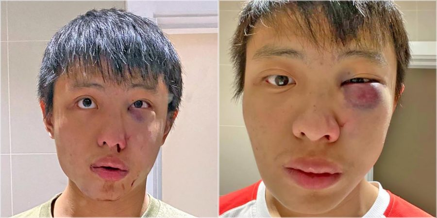 Singapore student, Jonathan Mok, beaten by a group of males in London.